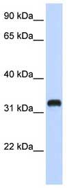 Western blot - Anti-C21ORF62 antibody (ab84746)