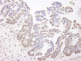 Immunohistochemistry (Formalin/PFA-fixed paraffin-embedded sections) - Anti-XPA antibody (ab84780)
