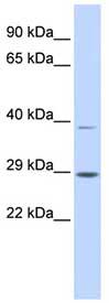 Western blot - Anti-SHOX antibody (ab84804)