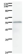 Western blot - Anti-BNC2 antibody [2082C5a] (ab84845)