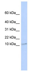 Western blot - Anti-Transmembrane protein 93 antibody (ab84902)