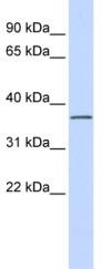 Western blot - Anti-LRRC25 antibody (ab84954)