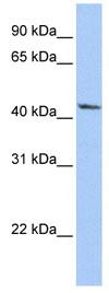 Western blot - Anti-IGFBP2 antibody (ab84964)