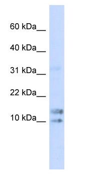 Western blot - Anti-IL15 antibody (ab85010)