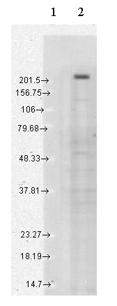 Western blot - Anti-TRPM7 antibody [S74-25] (ab85016)