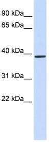 Western blot - Anti-QPCT antibody (ab85183)