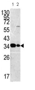 Western blot - Anti-MPST antibody - C-terminal (ab85211)
