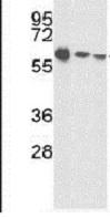 Western blot - Anti-ALS antibody (ab85222)