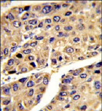 Immunohistochemistry (Formalin/PFA-fixed paraffin-embedded sections) - Anti-ALS antibody (ab85222)