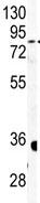 Western blot - Anti-Carbonic Anhydrase IV antibody - C-terminal (ab85225)