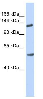 Western blot - Robo2 antibody (ab85278)