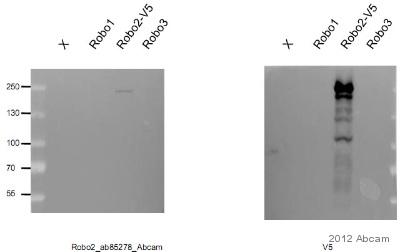 Western blot - Anti-Robo2 antibody (ab85278)