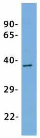 Western blot - Anti-KCNK9 antibody (ab85289)