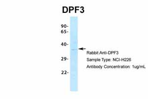 Western blot - Anti-CERD4 antibody (ab85360)