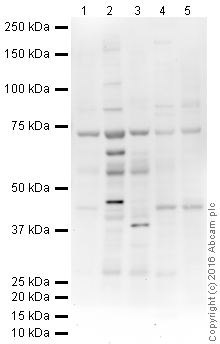 Western blot - Anti-SLC40A1 antibody (ab85370)