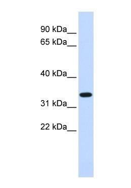Western blot - Anti-TRIM14 antibody (ab85374)