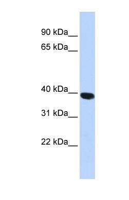 Western blot - Anti-HYAL1 antibody (ab85375)