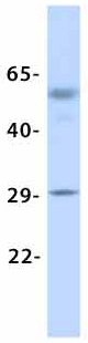 Western blot - Anti-KCNN2 antibody (ab85401)