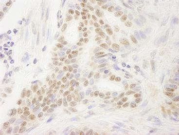 Immunohistochemistry (Formalin/PFA-fixed paraffin-embedded sections) - Anti-DEK antibody (ab85407)