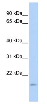 Western blot - Anti-TNFAIP8L1 antibody (ab85409)