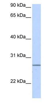 Western blot - Anti-GRPEL2 antibody (ab85428)