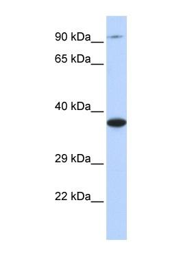 Western blot - Anti-BBS5 antibody (ab85433)
