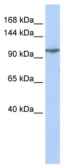 Western blot - Anti-GRIK5 antibody (ab85441)
