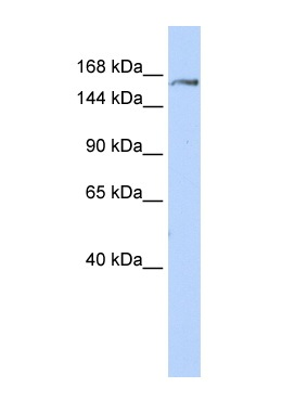 Western blot - Anti-Glutamyl Prolyl tRNA synthetase antibody (ab85447)