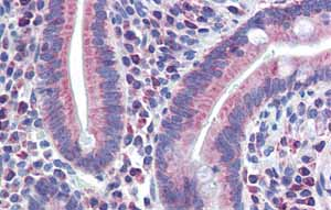 Immunohistochemistry (Formalin/PFA-fixed paraffin-embedded sections) - Anti-PXR antibody (ab85451)