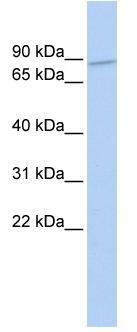 Western blot - Anti-ZNF800 antibody (ab85478)