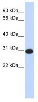 Western blot - Anti-CAMLG antibody (ab85480)