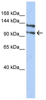 Western blot - Anti-RBM5 antibody (ab85504)