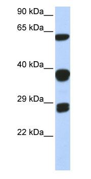 Western blot - Anti-SNRPB antibody (ab85534)