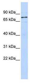 Western blot - Anti-WBP11 antibody (ab85563)