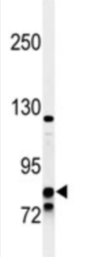 Western blot - Anti-Glucocorticoid Receptor beta antibody (ab85622)