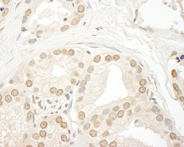 Immunohistochemistry (Formalin/PFA-fixed paraffin-embedded sections) - Anti-C19orf61 antibody (ab85659)