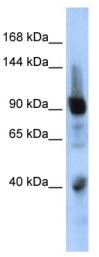 Western blot - Anti-ZNF507 antibody (ab85672)