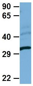 Western blot - Anti-Nkx2.2 antibody (ab85675)