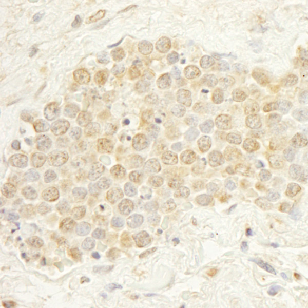 Immunohistochemistry (Formalin/PFA-fixed paraffin-embedded sections) - Anti-WDR20 antibody (ab85729)