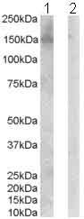 Western blot - Anti-ErbB 3 antibody (ab85731)