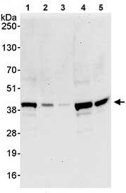 Western blot - Anti-NRBF2 antibody (ab85733)