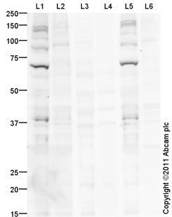 Western blot - Anti-Chk2 (phospho T68) antibody (ab85743)