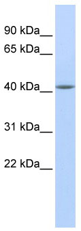 Western blot - Anti-Epithelial Stromal Interaction 1 antibody (ab85750)