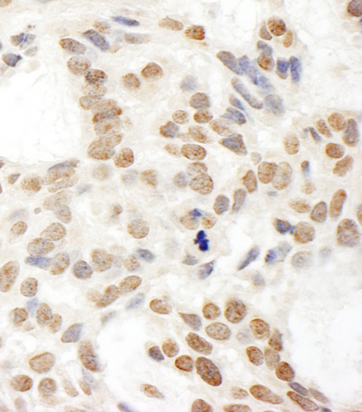 Immunohistochemistry (Formalin/PFA-fixed paraffin-embedded sections) - Anti-POP1 antibody (ab85757)
