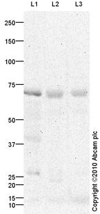 Western blot - SLC27A2 antibody (ab85801)
