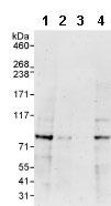 Western blot - Anti-ABLIM1 antibody (ab85808)