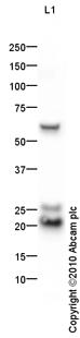 Western blot - Anti-CSRP1 antibody (ab85810)