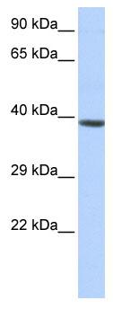 Western blot - Anti-HOXA2 antibody (ab85848)