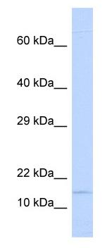 Western blot - Anti-Ninjurin 1 antibody (ab85891)
