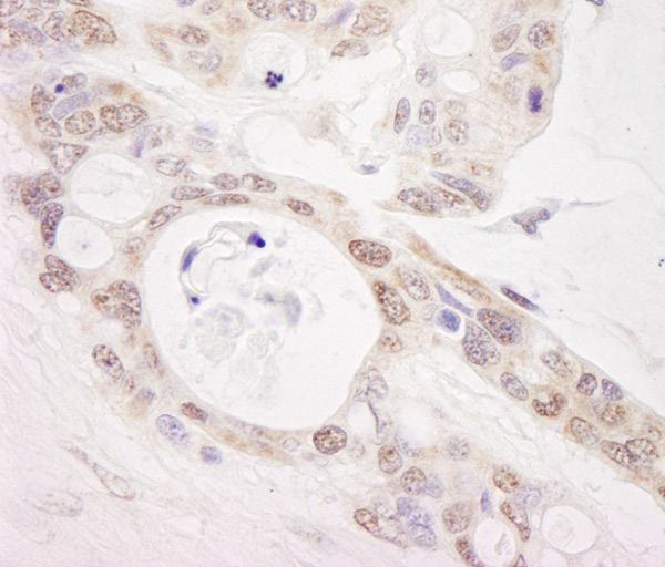 Immunohistochemistry (Formalin/PFA-fixed paraffin-embedded sections) - Anti-PUS1 antibody (ab85938)